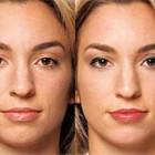 General skincare programs